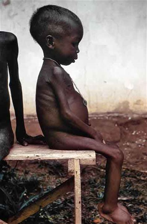 Difference between Undernourishment and Malnourishment